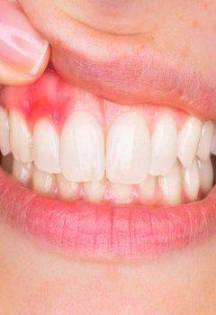 Eryaman ve Sincan Diş Kliniği